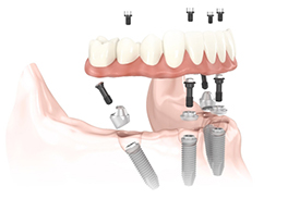All On 4 Dental Implant Illustration