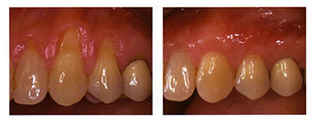 Soft tissue Grafting: Before / After