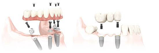 Illustration of All On 4 Implant Technique