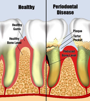 Healthy gums compared to periodontal disease
